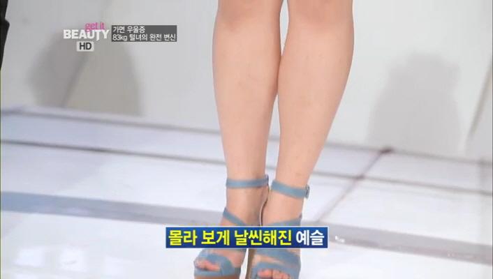 1) 제일 먼저 변한곳은 몰라보게 날씬해진 예슬씨의 몸매와 영구제모로 깨끗해진 다리!