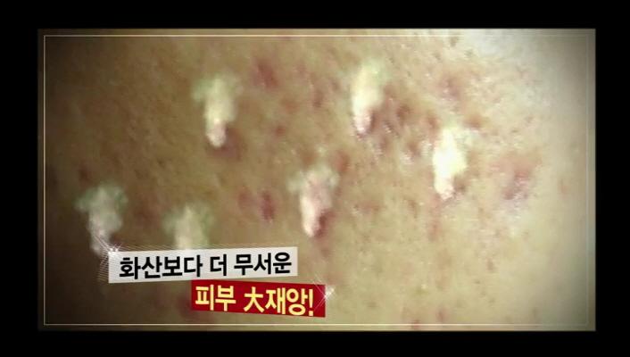 정말 화산 보다 더 무서운 피부 대 재앙... 완전 공감가는 말입니다 ㅠㅠㅠ 여드름은 굉장히 많은 사람들이 겪는 피부 트러블 인데요.