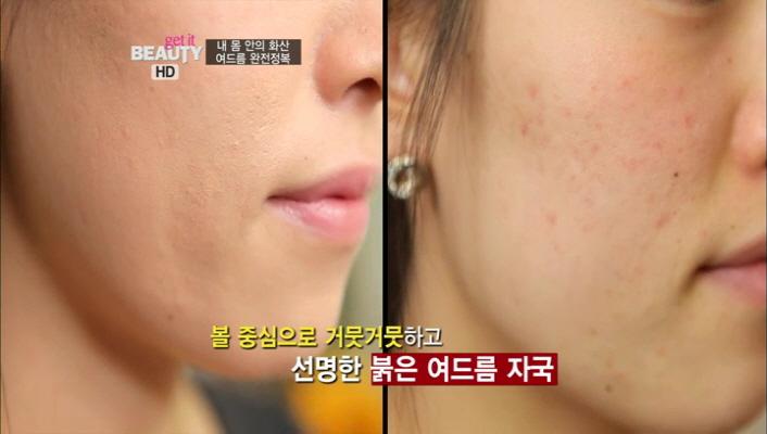 1) 복합성 피부를 지닌 베러걸스 박지희, 그녀의 여드름 진단<br> 1-2) 볼 중심으로 거뭇거뭇하고 선명한 붉은 여드름 자국이 보이네요.