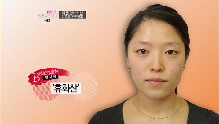 1) 복합성 피부를 지닌 베러걸스 박지희, 그녀의 여드름 진단<br> 1-3) '휴화산' 유형의 여드름, 관리 방법은?