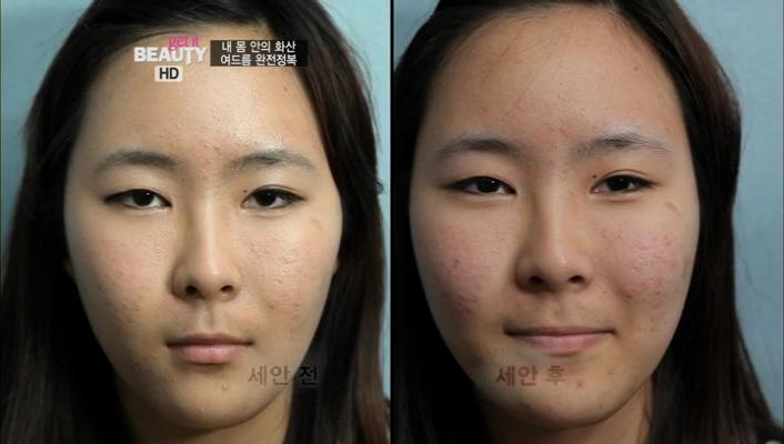 2) 지성 타입의 홍예은 베러걸스, 그녀의 여드름 진단<br> 2-2) 세안 후 얼굴 전체에 여드름과 흉터가 공존해 있는 것을 볼 수 있었습니다. 자신에게 맞지 않는 피부 타입의 화장품을 사용하고, 오일이 함유된 BB크림을 사용하는 것도 문제점으로 발견되었습니다.