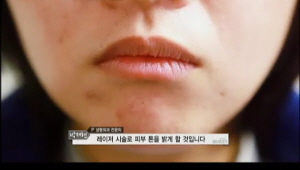 1) 피부 진단을 받은 그녀는, 어두운 피부톤과 여드름 자국을 치료하기 위해 레이져 시술을 받게 됩니다.