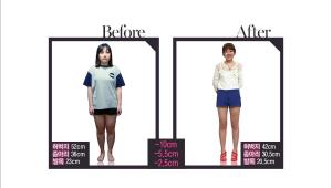 통통한 다리가 고민이었던 기현주 Better Girls 역시 고주파 시술로 다리 염증을 치료해 12주 만에 마네킹 같은 다리 라인 만들기 성공!!