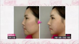- 그리고 낮은 코 끝 때문에 얼굴이 길어 보여요! 이 부분은 연골을 이용해 코 끝 성형을 하면 밝은 인상으로 바뀔 수 있어요!