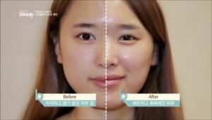 스크릿 케어 후 매끈하고 촉촉해진 윤기나는 꿀광 피부 결로 변화 성공!