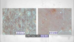 각질이 많았던 문혜영 베러걸스의 비교사진을 보면 확실하게 각질이 제거된 것을 느낄 수 있어요.