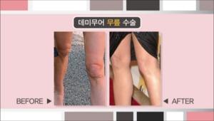 할리우드 스타 데미 무어는 젊어지는 무릎수술을 받았다고 하는데요 <br> 나이가 들면서 지방의 재배치가 일어나고 중력으로 인해 살이 처지면서 무릎이 쭈글쭈글해지는걸 리프닝 수술이나 레이저 시술을 통해 개선할 수 있다고 해요.