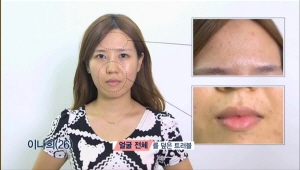 이나희 베러걸스는 얼굴 전체를 덮은 트러블, 이마 주름, 늘어진 볼살 때문에 피부개선이 절실한 상황이에요.