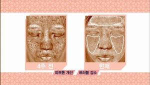 영정애 & 이나희 모녀걸스의 피부 공개! 양정애 베러맘스의 경우 주름이 많이 개선되어 있는 모습이 보이고, 이나희 베러걸스의 경우 피부톤이 감소되고, 트러블이 감소된 모습을 확인 할 수 있어요.