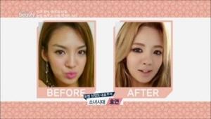 눈썹 성형의 대표주자는 소녀시대 효연! <BR>눈썹 모양만 바꿨을 뿐인데 러블리만 이미지로 확 바뀌었어요. <BR>성형의혹도 많이 있었지만 예뻐진 비밀은 바로 눈썹!!