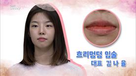 첫번째 참가자는  흐리멍덩한 입술이예요!