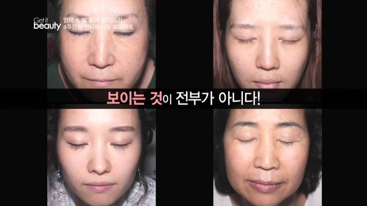 [겟잇뷰티 2014 25회] Ⅱ. 안티에이징 '4주간의 기적'